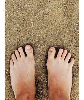 Help, mijn voeten doen pijn!